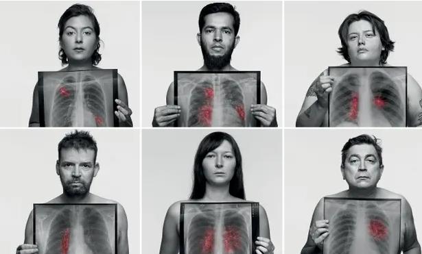 Na rakovinu pľúc umierajú aj ľudia, ktorí nefajčia,ale žijú v znečistenom prostredí